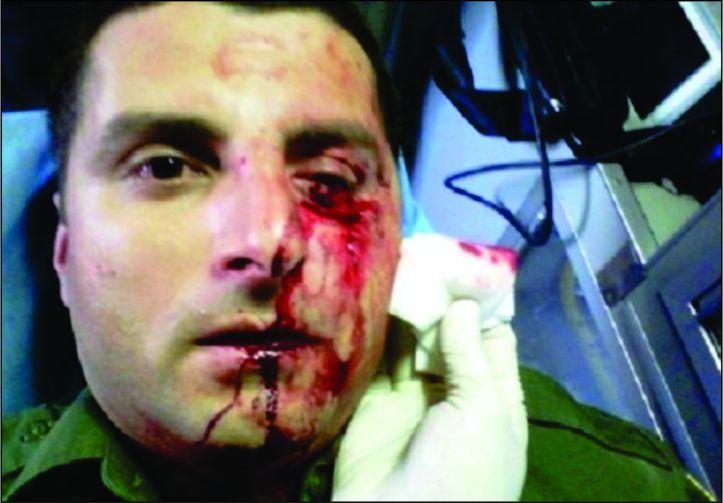 O agente sofreu uma lesão na órbita ocular direita.jpg
